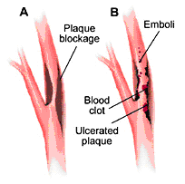blood clot or emboli