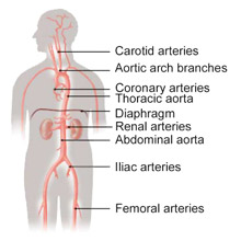 Major Arteries